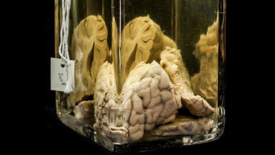 "An example of a ""wet specimen"" from the Mutter Museum, from the Museum's site."